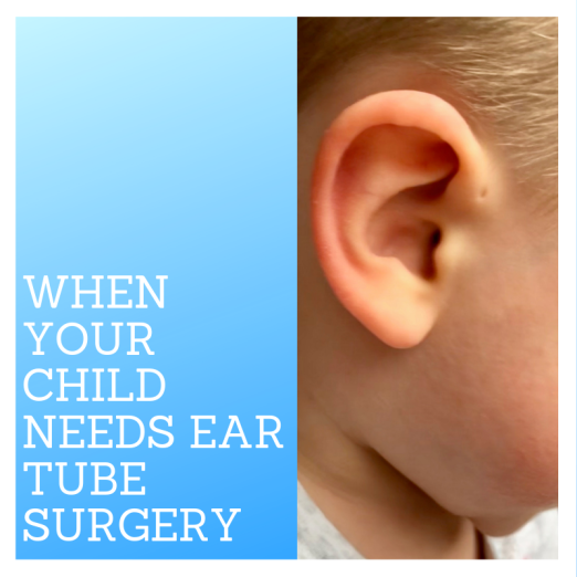 When Your child needs ear tube surgery-7